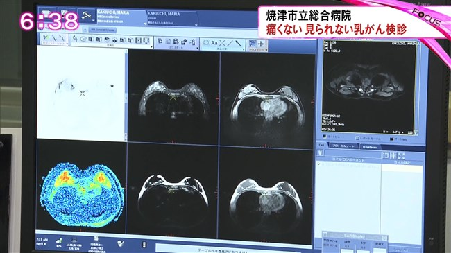 垣内麻里亜~乳がん検診レポートを受けオッパイをモニター越しで見せた!0004shikogin